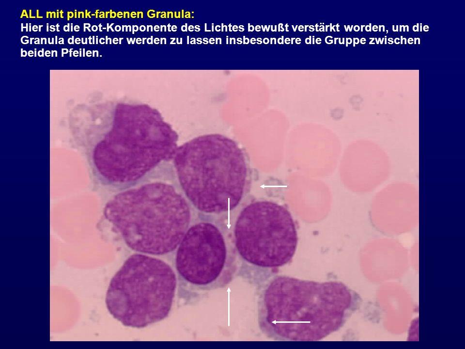 ALL mit pink-farbenen Granula: Hier ist die Rot-Komponente des Lichtes bewußt verstärkt worden, um die Granula deutlicher werden zu lassen insbesonder