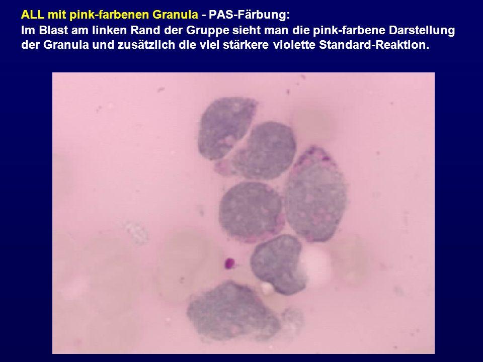 ALL mit pink-farbenen Granula - PAS-Färbung: Im Blast am linken Rand der Gruppe sieht man die pink-farbene Darstellung der Granula und zusätzlich die