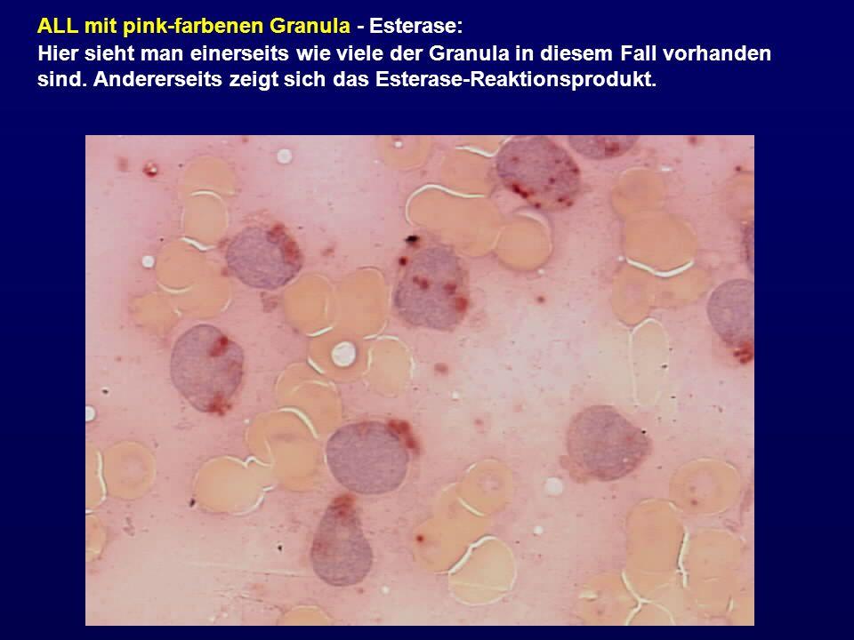 ALL mit pink-farbenen Granula - Esterase: Hier sieht man einerseits wie viele der Granula in diesem Fall vorhanden sind. Andererseits zeigt sich das E
