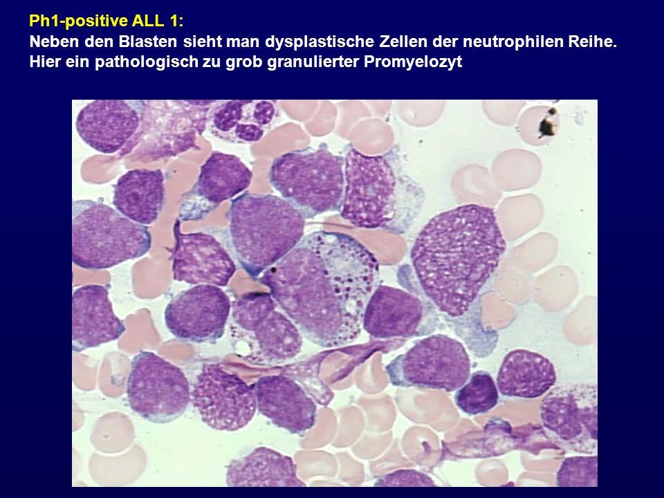 Ph1-positive ALL 1: Neben den Blasten sieht man dysplastische Zellen der neutrophilen Reihe. Hier ein pathologisch zu grob granulierter Promyelozyt