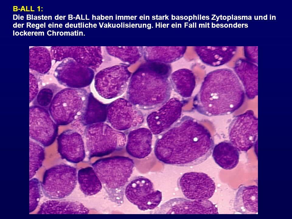B-ALL 1: Die Blasten der B-ALL haben immer ein stark basophiles Zytoplasma und in der Regel eine deutliche Vakuolisierung. Hier ein Fall mit besonders