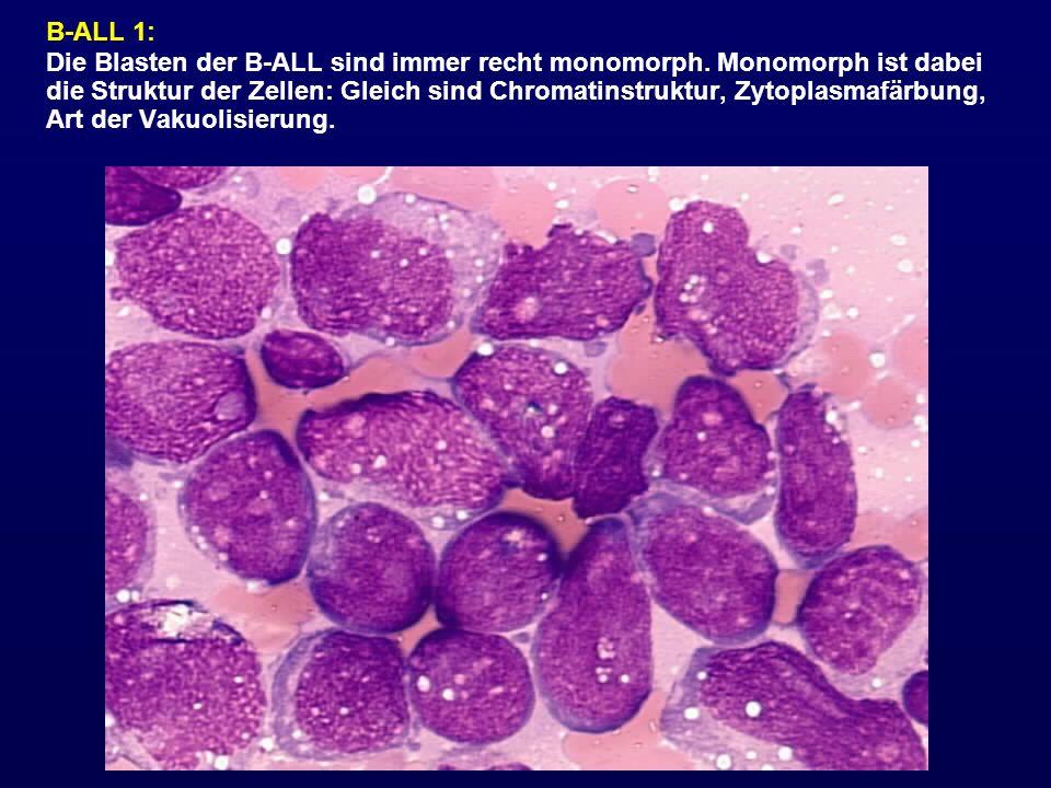 B-ALL 1: Die Blasten der B-ALL sind immer recht monomorph. Monomorph ist dabei die Struktur der Zellen: Gleich sind Chromatinstruktur, Zytoplasmafärbu