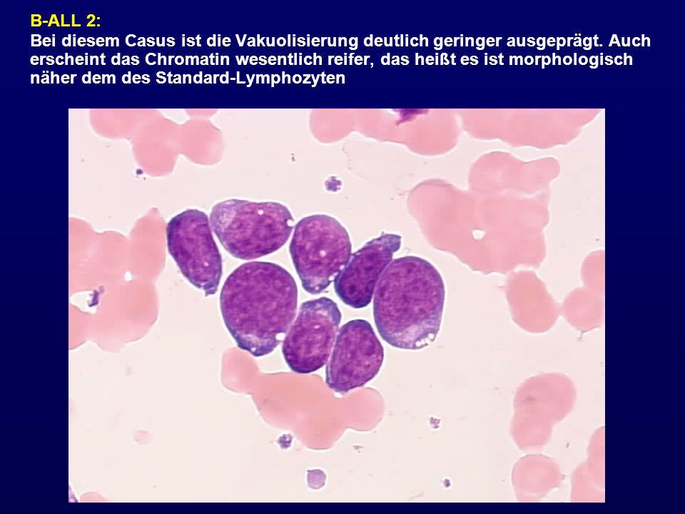 B-ALL 2: Bei diesem Casus ist die Vakuolisierung deutlich geringer ausgeprägt. Auch erscheint das Chromatin wesentlich reifer, das heißt es ist morpho