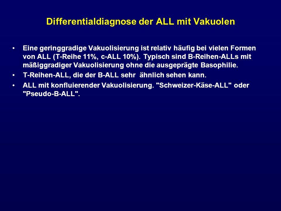 Differentialdiagnose der ALL mit Vakuolen Eine geringgradige Vakuolisierung ist relativ häufig bei vielen Formen von ALL (T-Reihe 11%, c-ALL 10%). Typ