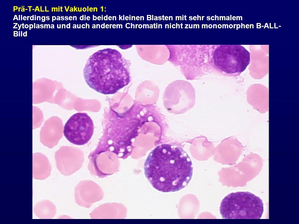 Prä-T-ALL mit Vakuolen 1: Allerdings passen die beiden kleinen Blasten mit sehr schmalem Zytoplasma und auch anderem Chromatin nicht zum monomorphen B
