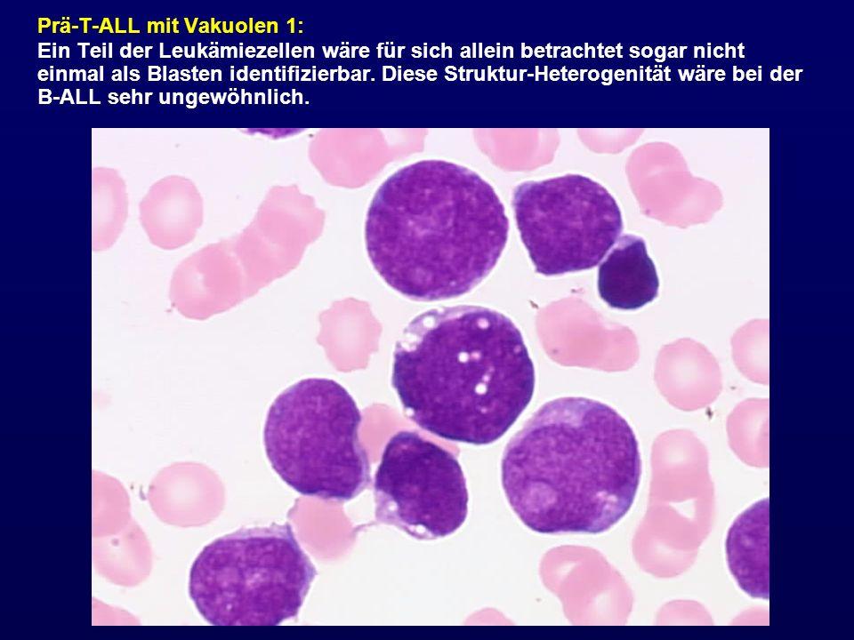 Prä-T-ALL mit Vakuolen 1: Ein Teil der Leukämiezellen wäre für sich allein betrachtet sogar nicht einmal als Blasten identifizierbar. Diese Struktur-H