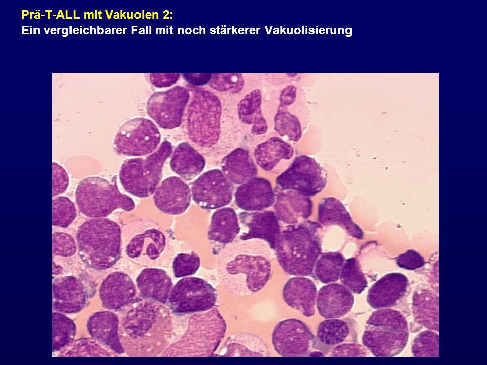 Prä-T-ALL mit Vakuolen 2: Ein vergleichbarer Fall mit noch stärkerer Vakuolisierung