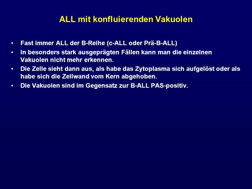 ALL mit konfluierenden Vakuolen Fast immer ALL der B-Reihe (c-ALL oder Prä-B-ALL) In besonders stark ausgeprägten Fällen kann man die einzelnen Vakuol
