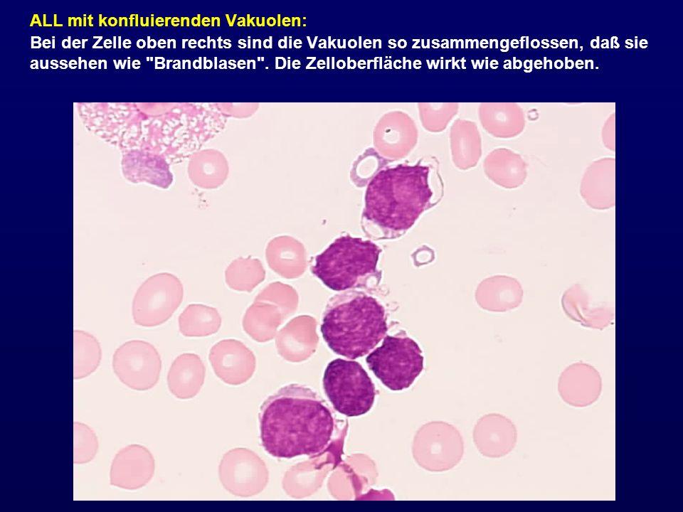 ALL mit konfluierenden Vakuolen: Bei der Zelle oben rechts sind die Vakuolen so zusammengeflossen, daß sie aussehen wie