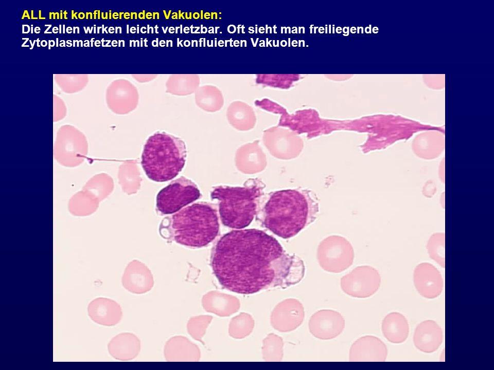 ALL mit konfluierenden Vakuolen: Die Zellen wirken leicht verletzbar. Oft sieht man freiliegende Zytoplasmafetzen mit den konfluierten Vakuolen.