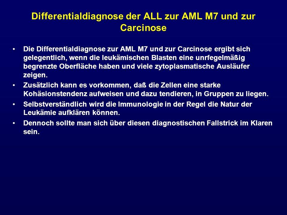 Differentialdiagnose der ALL zur AML M7 und zur Carcinose Die Differentialdiagnose zur AML M7 und zur Carcinose ergibt sich gelegentlich, wenn die leu