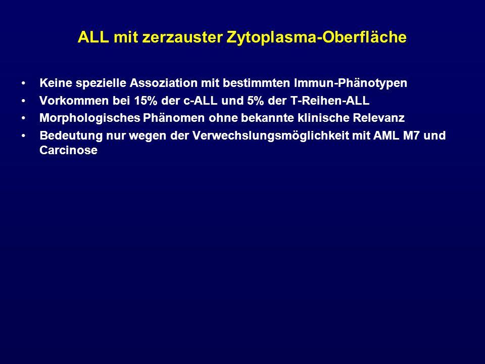ALL mit zerzauster Zytoplasma-Oberfläche Keine spezielle Assoziation mit bestimmten Immun-Phänotypen Vorkommen bei 15% der c-ALL und 5% der T-Reihen-A