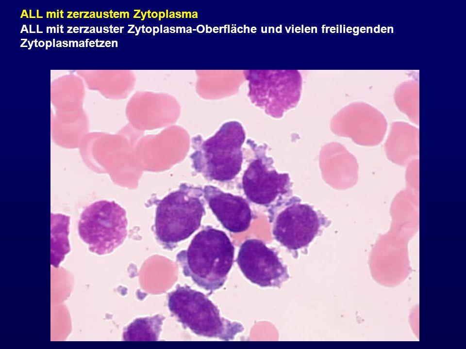 ALL mit zerzaustem Zytoplasma ALL mit zerzauster Zytoplasma-Oberfläche und vielen freiliegenden Zytoplasmafetzen