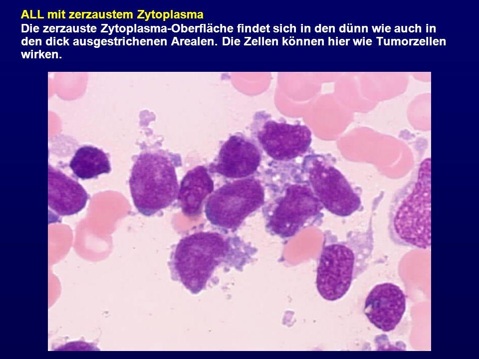 ALL mit zerzaustem Zytoplasma Die zerzauste Zytoplasma-Oberfläche findet sich in den dünn wie auch in den dick ausgestrichenen Arealen. Die Zellen kön