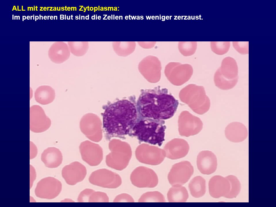 ALL mit zerzaustem Zytoplasma: Im peripheren Blut sind die Zellen etwas weniger zerzaust.