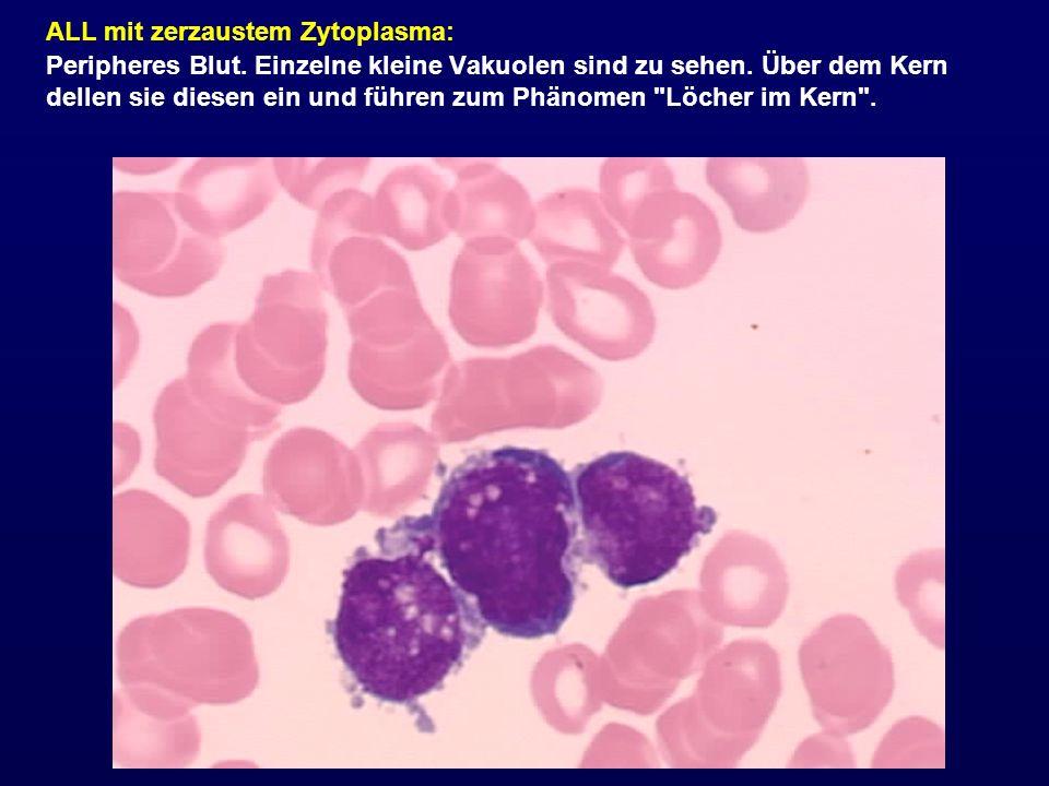 ALL mit zerzaustem Zytoplasma: Peripheres Blut. Einzelne kleine Vakuolen sind zu sehen. Über dem Kern dellen sie diesen ein und führen zum Phänomen