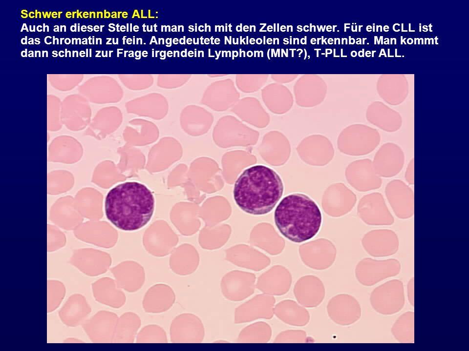Schwer erkennbare ALL: Auch an dieser Stelle tut man sich mit den Zellen schwer. Für eine CLL ist das Chromatin zu fein. Angedeutete Nukleolen sind er