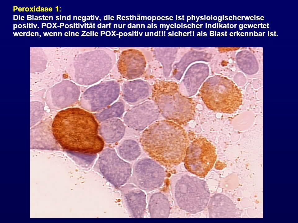 Peroxidase 1: Die Blasten sind negativ, die Resthämopoese ist physiologischerweise positiv. POX-Positivität darf nur dann als myeloischer Indikator ge