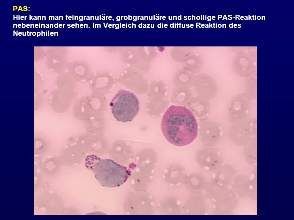 PAS: Hier kann man feingranuläre, grobgranuläre und schollige PAS-Reaktion nebeneinander sehen. Im Vergleich dazu die diffuse Reaktion des Neutrophile