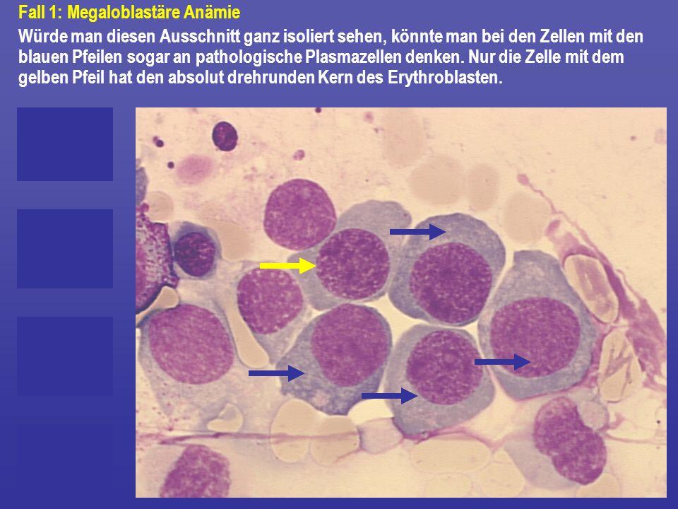 Fall 1: Megaloblastäre Anämie Würde man diesen Ausschnitt ganz isoliert sehen, könnte man bei den Zellen mit den blauen Pfeilen sogar an pathologische