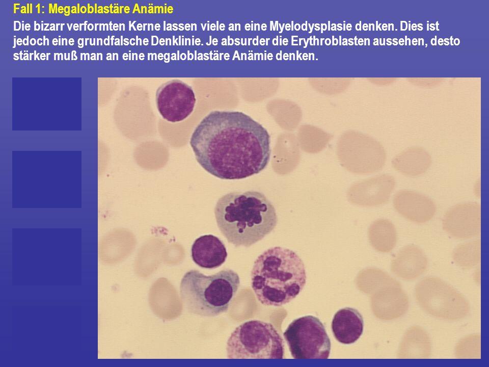 Fall 1: Megaloblastäre Anämie Die bizarr verformten Kerne lassen viele an eine Myelodysplasie denken. Dies ist jedoch eine grundfalsche Denklinie. Je