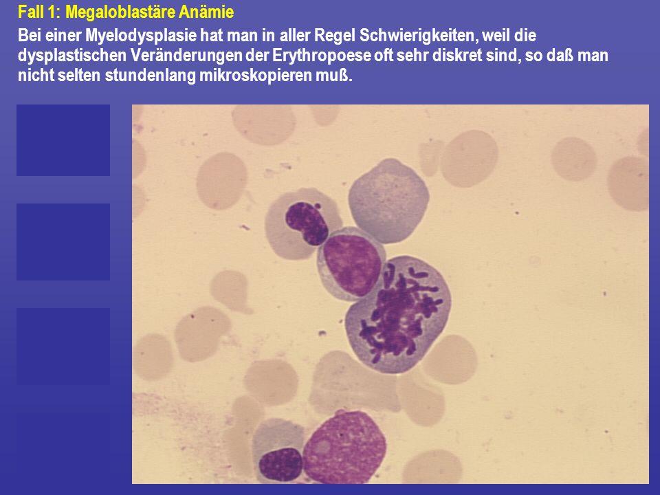 Fall 1: Megaloblastäre Anämie Bei einer Myelodysplasie hat man in aller Regel Schwierigkeiten, weil die dysplastischen Veränderungen der Erythropoese