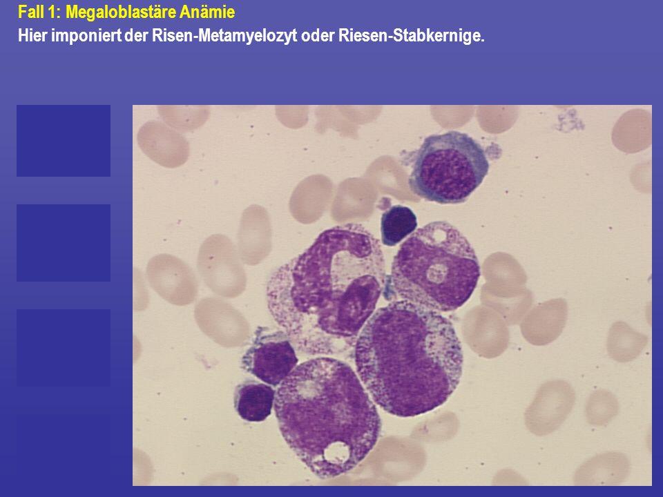 Fall 1: Megaloblastäre Anämie Hier imponiert der Risen-Metamyelozyt oder Riesen-Stabkernige.