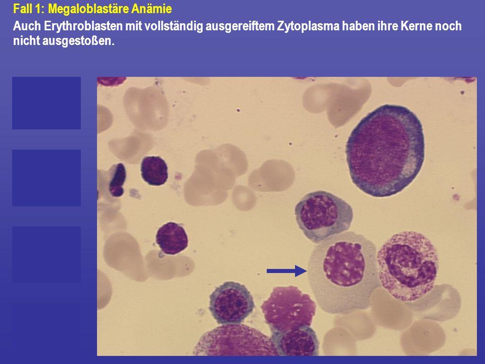 Fall 1: Megaloblastäre Anämie Auch Erythroblasten mit vollständig ausgereiftem Zytoplasma haben ihre Kerne noch nicht ausgestoßen.