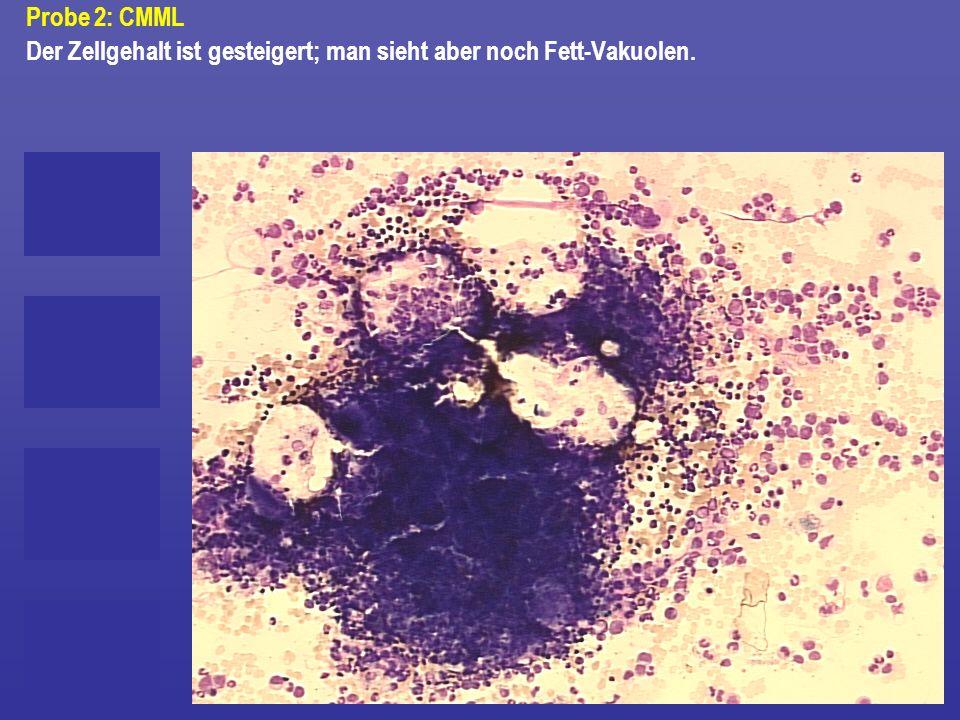 Probe 2: CMML Der Zellgehalt ist gesteigert; man sieht aber noch Fett-Vakuolen.
