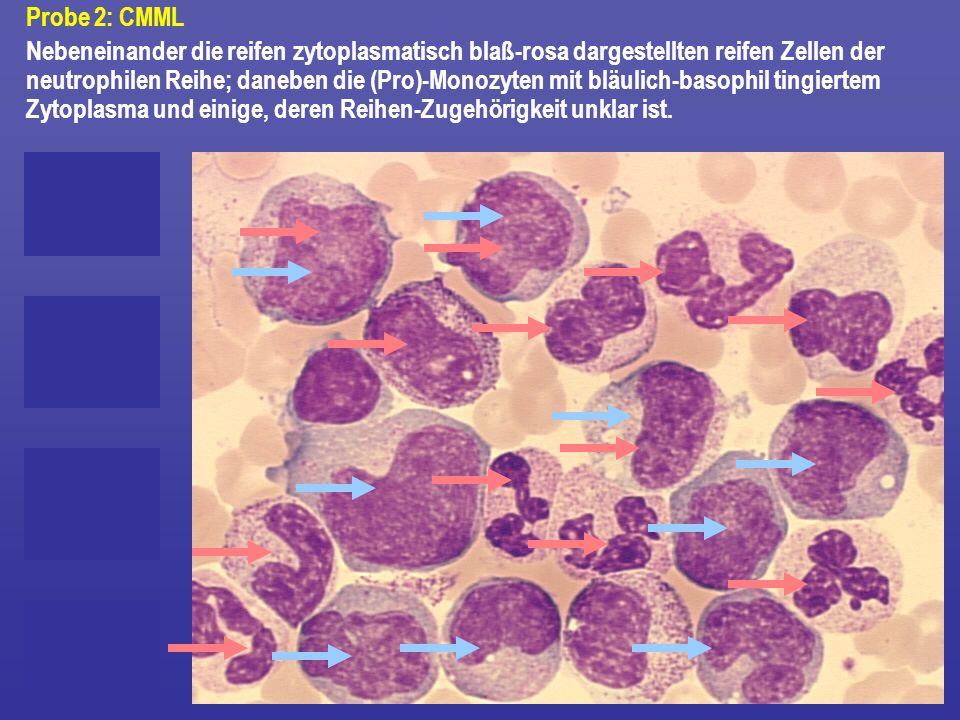 Probe 2: CMML Nebeneinander die reifen zytoplasmatisch blaß-rosa dargestellten reifen Zellen der neutrophilen Reihe; daneben die (Pro)-Monozyten mit b