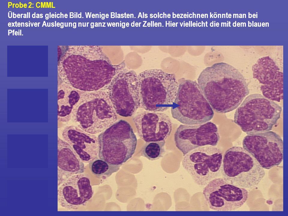 Probe 2: CMML Überall das gleiche Bild. Wenige Blasten. Als solche bezeichnen könnte man bei extensiver Auslegung nur ganz wenige der Zellen. Hier vie