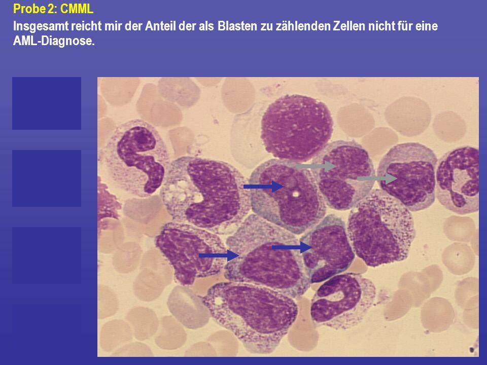 Insgesamt reicht mir der Anteil der als Blasten zu zählenden Zellen nicht für eine AML-Diagnose.