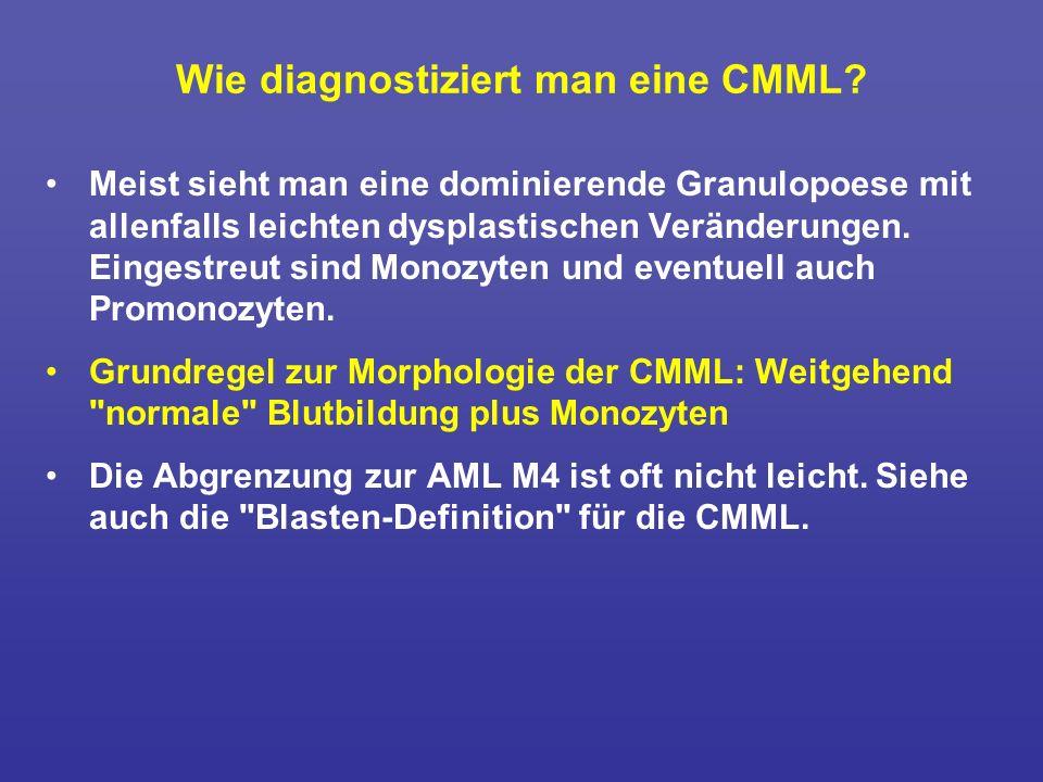 Wie diagnostiziert man eine CMML? Meist sieht man eine dominierende Granulopoese mit allenfalls leichten dysplastischen Veränderungen. Eingestreut sin