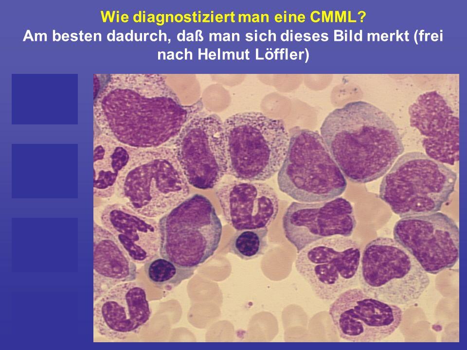 Wie diagnostiziert man eine CMML? Am besten dadurch, daß man sich dieses Bild merkt (frei nach Helmut Löffler)