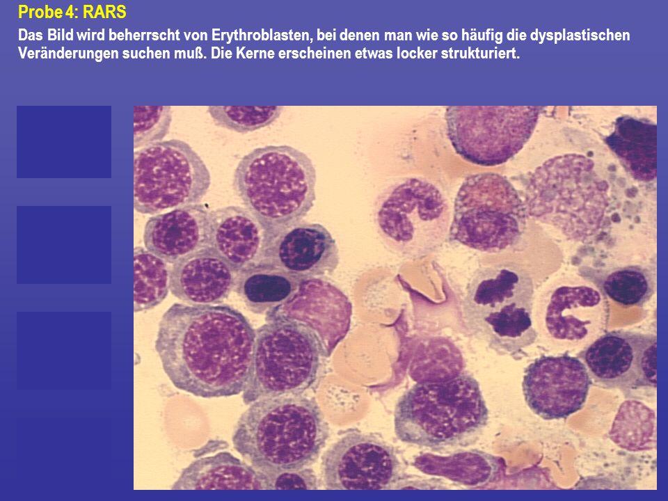 Probe 4: RARS Das Bild wird beherrscht von Erythroblasten, bei denen man wie so häufig die dysplastischen Veränderungen suchen muß. Die Kerne erschein