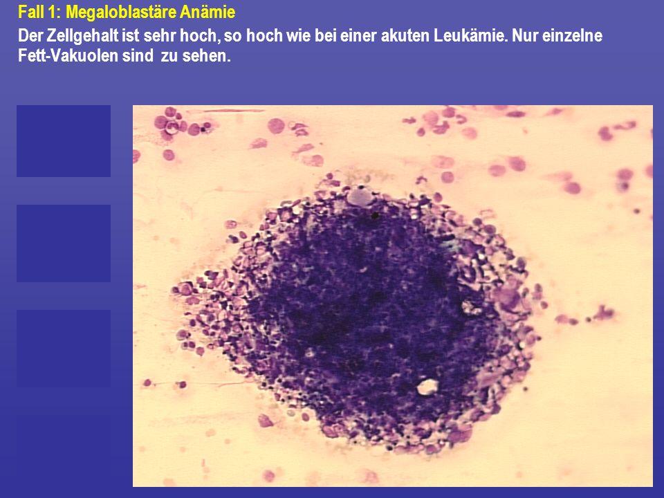 Fall 1: Megaloblastäre Anämie Der Zellgehalt ist sehr hoch, so hoch wie bei einer akuten Leukämie. Nur einzelne Fett-Vakuolen sind zu sehen.