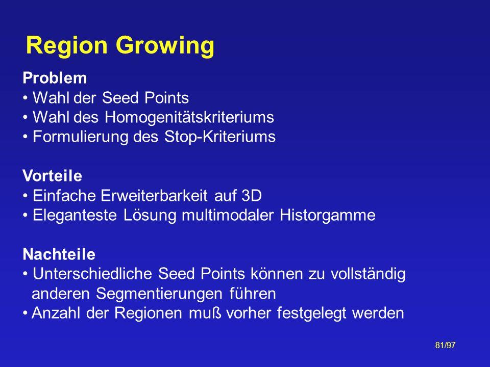 81/97 Region Growing Problem Wahl der Seed Points Wahl des Homogenitätskriteriums Formulierung des Stop-Kriteriums Vorteile Einfache Erweiterbarkeit a