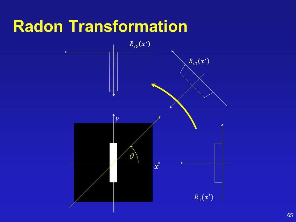 65 Radon Transformation