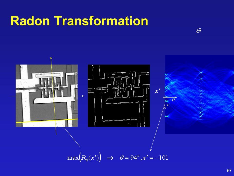 67 Radon Transformation