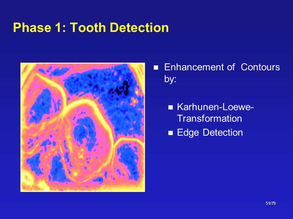 51/79 Phase 1: Tooth Detection Enhancement of Contours by: Karhunen-Loewe- Transformation Edge Detection