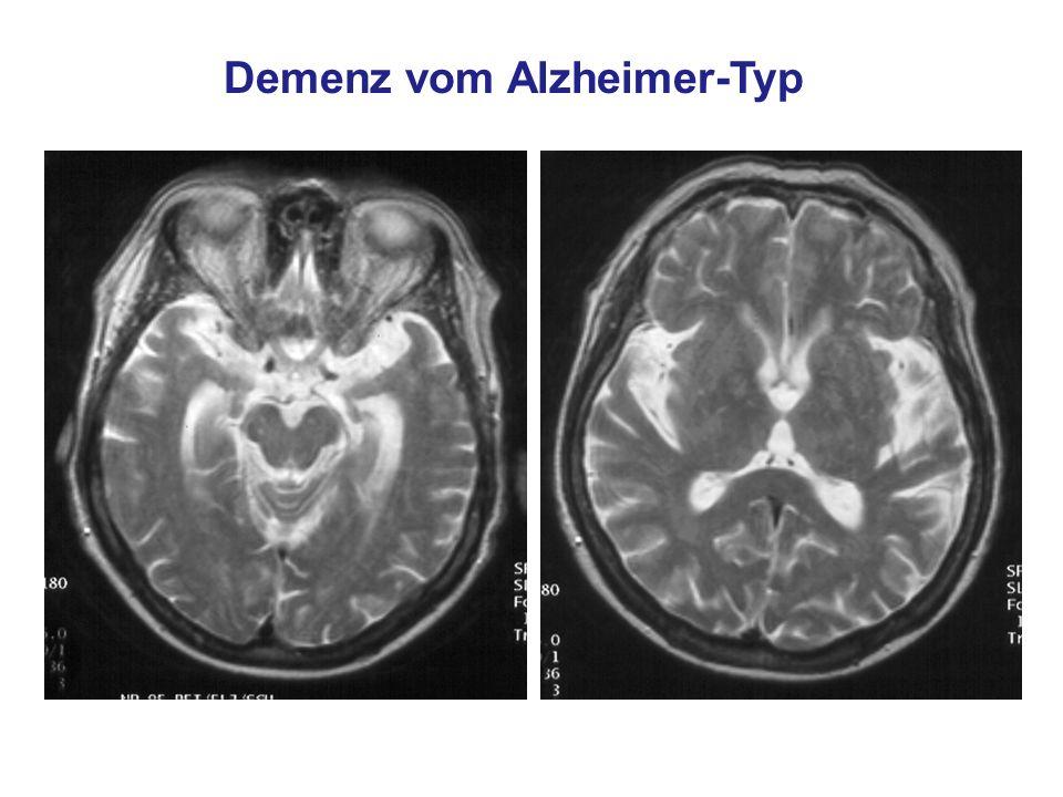 Demenz vom Alzheimer-Typ © Prof. Dr. W. Reith, Abt. f. Neuroradiologie, Universitätskliniken des Saarlandes