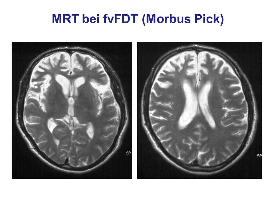 Prof. Dr. W. Reith, Abt. f. Neuroradiologie, Universitätskliniken des Saarlandes MRT bei fvFDT (Morbus Pick)