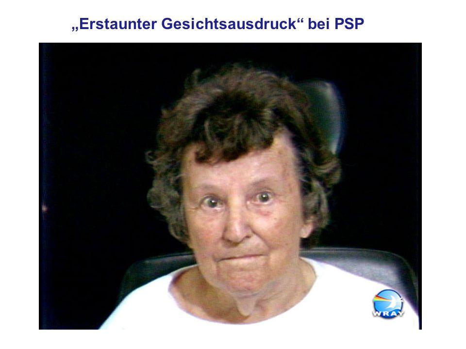 Erstaunter Gesichtsausdruck bei PSP