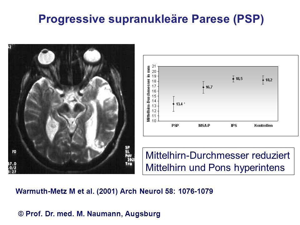 Mittelhirn-Durchmesser reduziert Mittelhirn und Pons hyperintens Warmuth-Metz M et al. (2001) Arch Neurol 58: 1076-1079 Progressive supranukleäre Pare