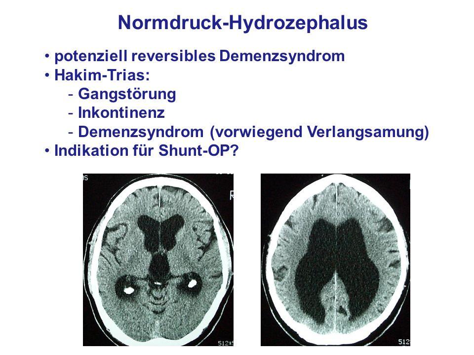 Normdruck-Hydrozephalus potenziell reversibles Demenzsyndrom Hakim-Trias: - Gangstörung - Inkontinenz - Demenzsyndrom (vorwiegend Verlangsamung) Indik