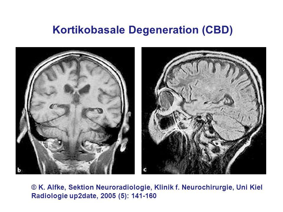 © K. Alfke, Sektion Neuroradiologie, Klinik f. Neurochirurgie, Uni Kiel Radiologie up2date, 2005 (5): 141-160 Kortikobasale Degeneration (CBD)