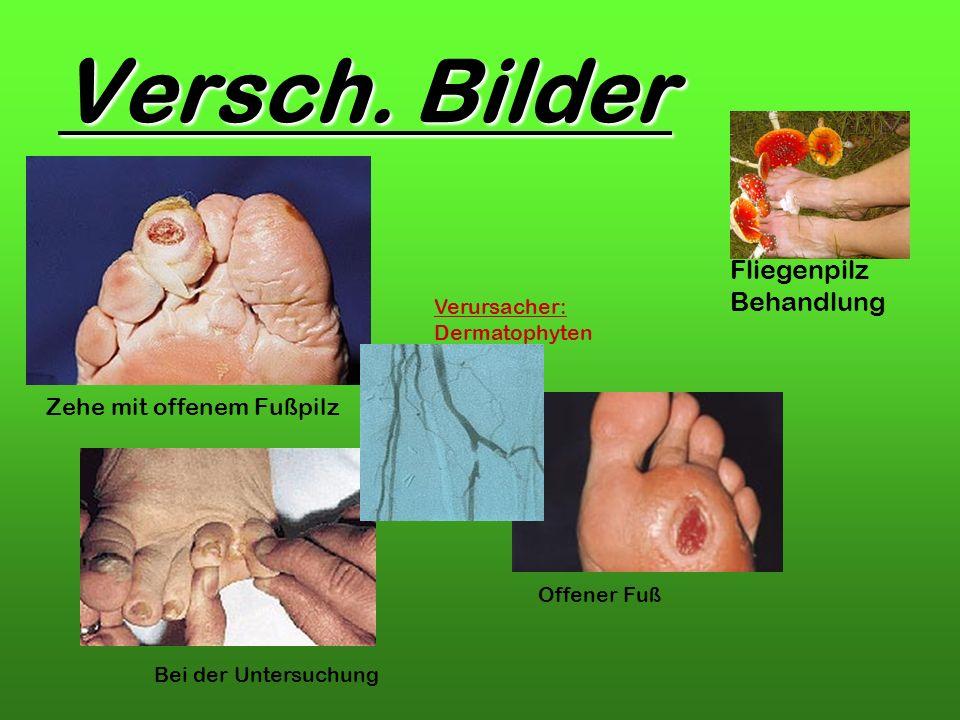 Versch. Bilder Fliegenpilz Behandlung Zehe mit offenem Fußpilz Offener Fuß Verursacher: Dermatophyten Bei der Untersuchung