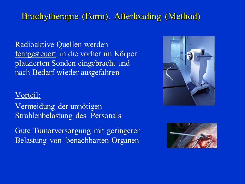 Brachytherapie (Form). Afterloading (Method) Radioaktive Quellen werden ferngesteuert in die vorher im Körper platzierten Sonden eingebracht und nach