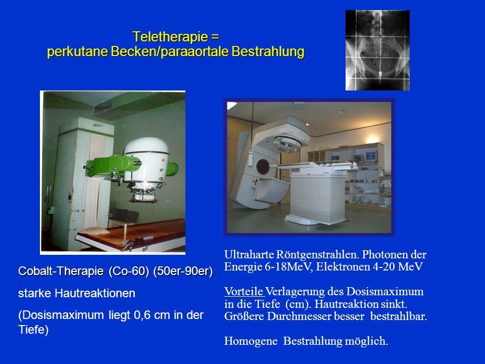 Teletherapie = perkutane Becken/paraaortale Bestrahlung Cobalt-Therapie (Co-60) (50er-90er) starke Hautreaktionen (Dosismaximum liegt 0,6 cm in der Ti