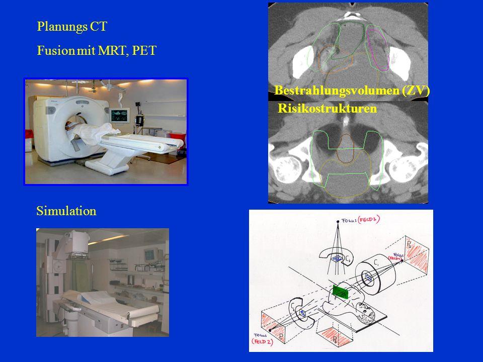 Simulation Bestrahlungsvolumen (ZV) Risikostrukturen Planungs CT Fusion mit MRT, PET